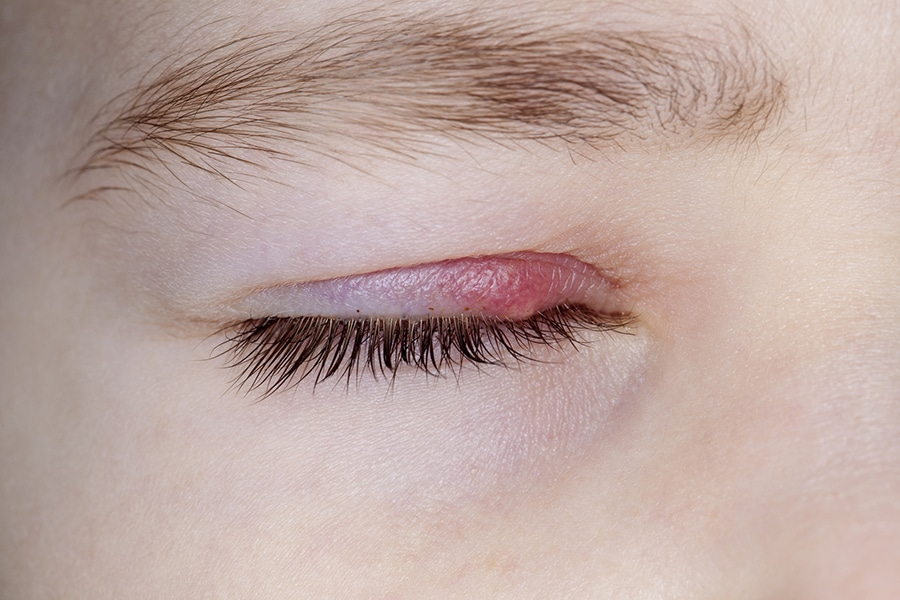 Eye Styes 101: What You Need to Know about Treating a Stye